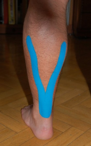 Apaño en la pierna