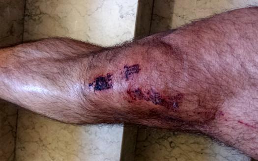 rodilla-herida